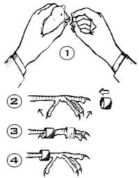 Δαχτυλίδωμα 1